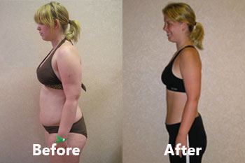 /Spa/13046-Shane-Diet-Weight-Loss-and-Fitness-Resorts