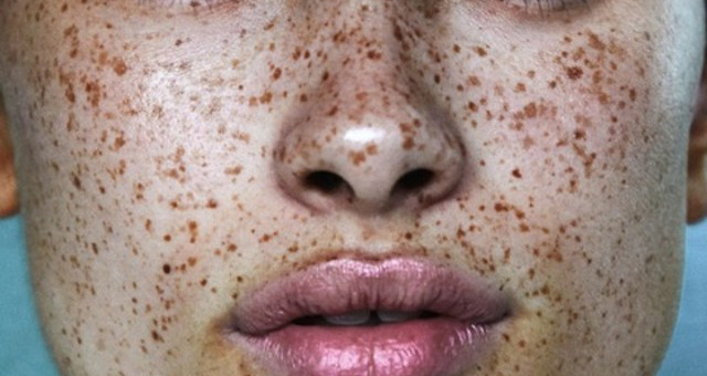 Concurrence You Deep extraction facial here
